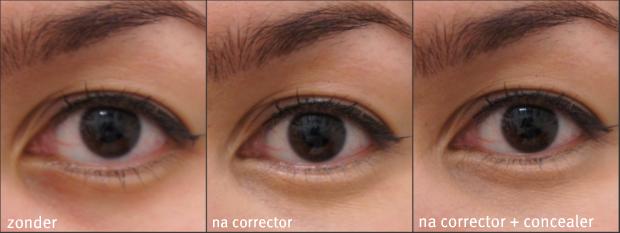 wat is de beste oogcreme