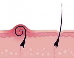 How-to: ingegroeide haartjes voorkomen