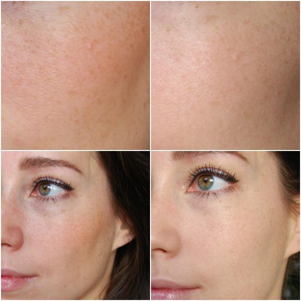 foundation droge huid