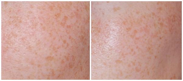 voor en na serum