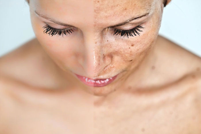 melasma-treatment