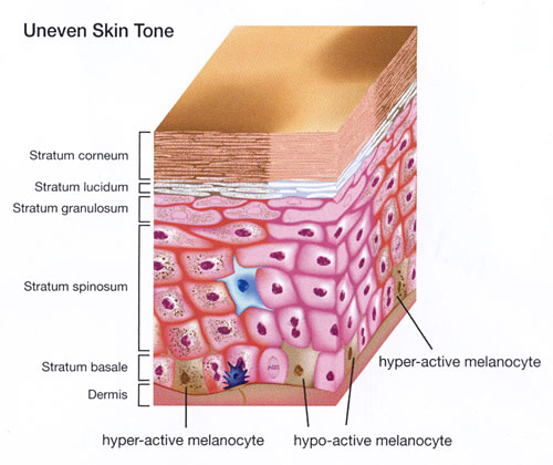 uneven-skin-tone
