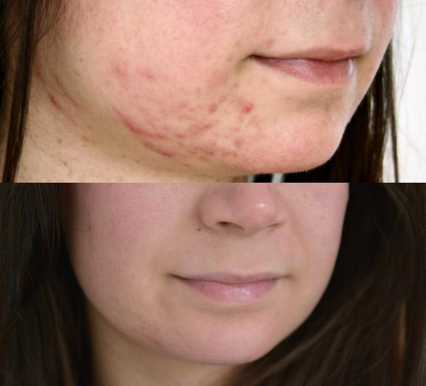 acne ontstekingen