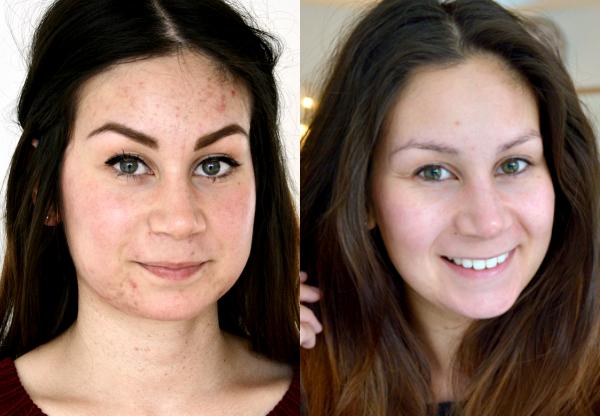 larissa acne behandelingen