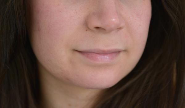 hormonale acne kaaklijn