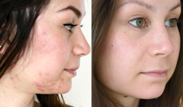 hormonale acne kin