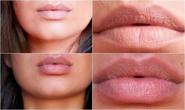 lip pomp voor en na