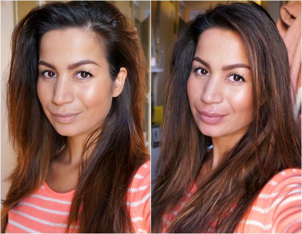 vollere lippen voor en na
