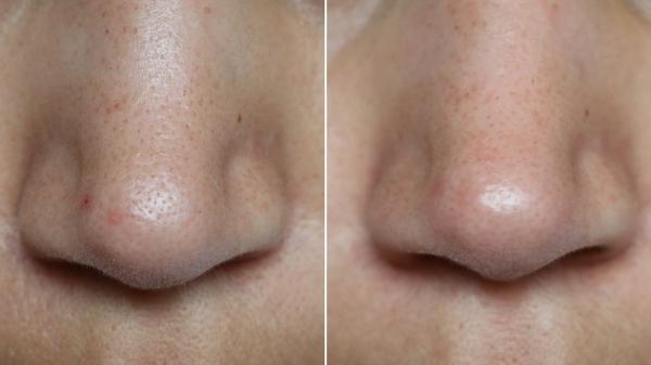 neus voor en na