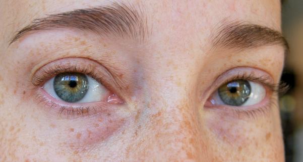 droge huid ogen