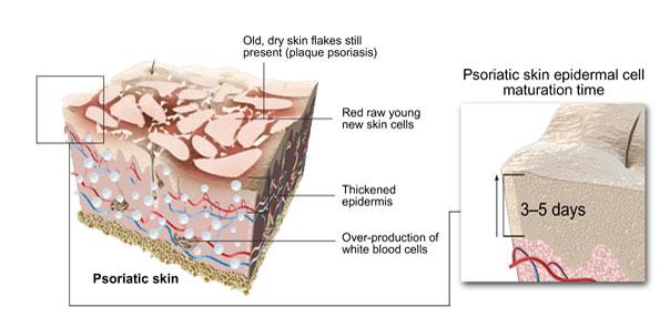 Layered_Psoriasis_skin