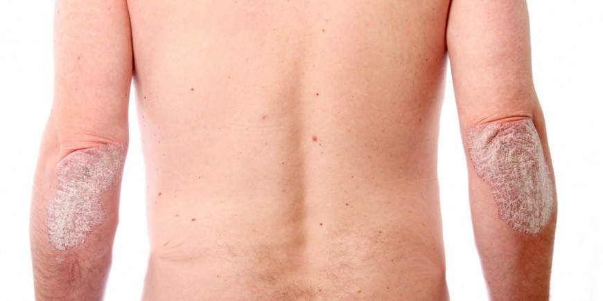 Psoriasis-causes-symptoms-and-treatment