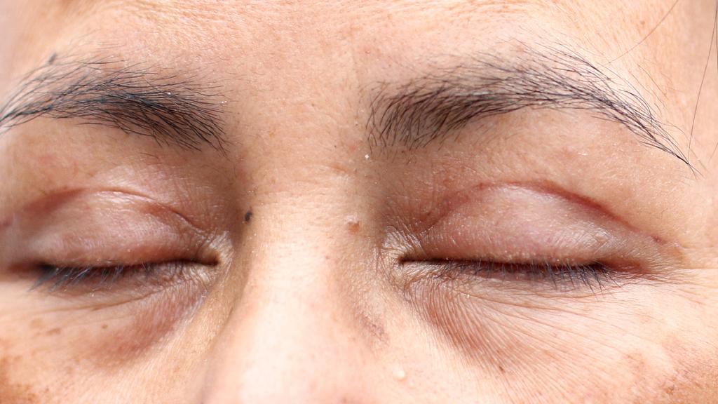 ooglidcorrectie na 4 weken