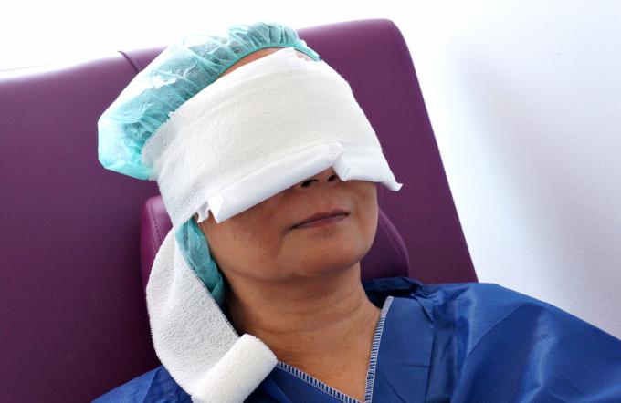 Verslag ooglidcorrectie Velthuis kliniek