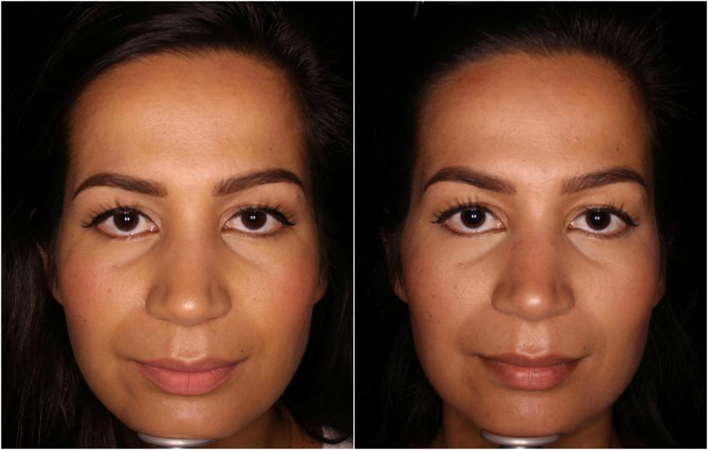 botox vooraanzicht