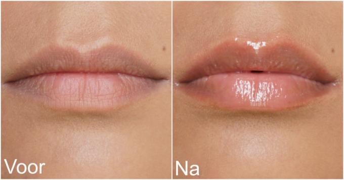 Wunderkiss | volle lippen binnen 2 minuten