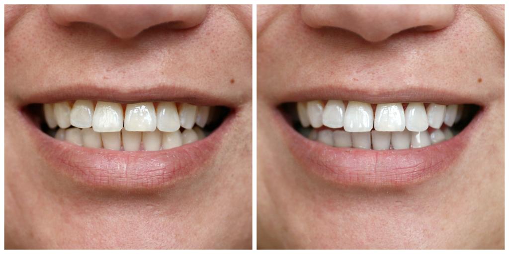 Hedendaags Dit gebeurt er tijdens het bleken van je tanden ⋆ Beautylab.nl UI-76